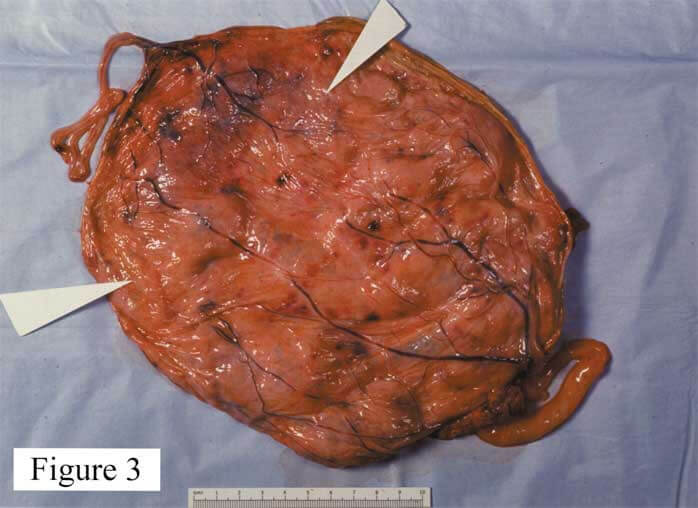 Figure 3. This is a placenta from a TTTS pregnancy that was lost at 21 weeks' gestation before any treatment could be started. Both twins had umbilical cords that were velamentous and attached at opposite ends of the placenta. The twins had multiple vascular connections between them (mostly artery-to-vein), but these connected in a vascular equator (arrows) that was off-center resulting in asymmetrical sharing (80% vs. 20%) of the placenta by the twins. (Photo courtesy of Dr. Julian E. De Lia)