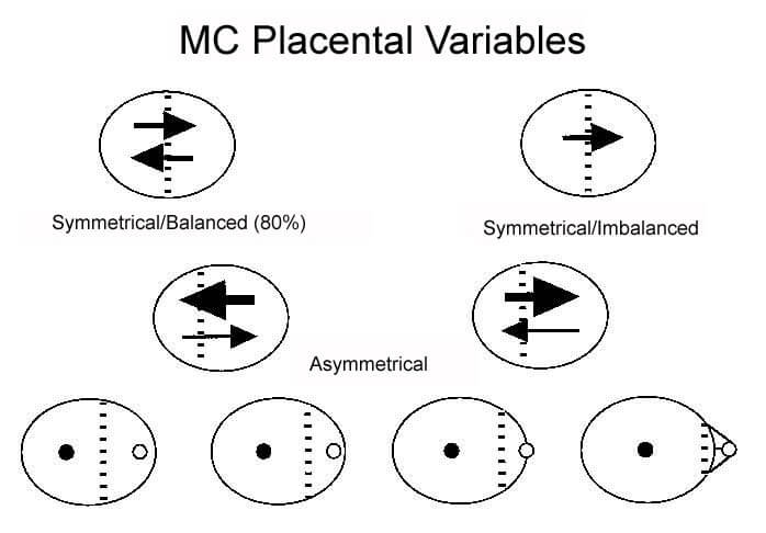 Figure 7. This diagram shows schematically the random variations in placental sharing and blood flow through the blood vessel connections in MC twin placentas. Twin babies with asymmetrically small placentas could benefit if they are recipients of blood transfusions from the twin with the larger placenta. Conversely, twins with small shares will be further compromised if they are the donors in TTTS. Depending on the degree of asymmetry (bottom row), placental insufficiency may express itself in the twin with a small share at different gestational ages. Arrows = direction and degree of blood flow; hatch marks = location of vascular equator; small open and closed circles = umbilical cord insertion sites. (Diagram courtesy of Dr. Julian E. De Lia)